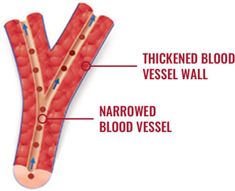 Image of a healthy blood vessel versus a blood vessel with PAH